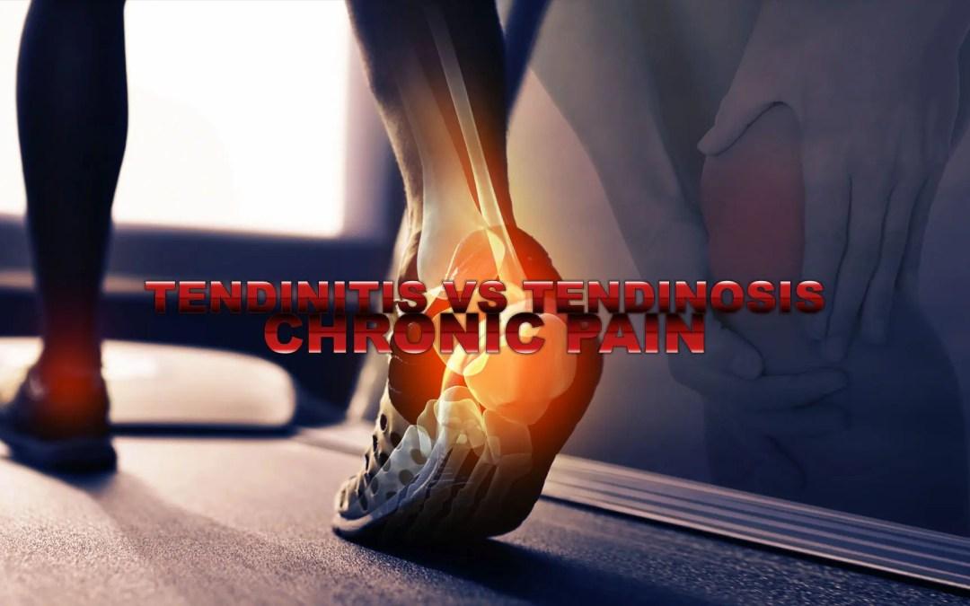 Tendinitis vs Tendinosis | Chronic Pain