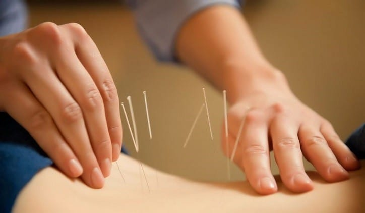Image of an acupuncture practitioner performing acupuncture as an alternative treatment option for sciatica.
