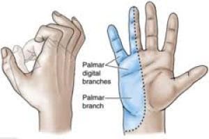Klumpke's Paralysis Image | El Paso, TX Chiropractor