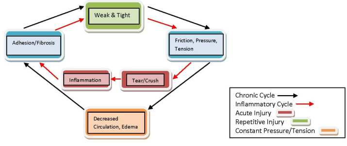 Active Release Technique Diagram 2   El Paso, TX Chiropractor