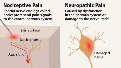 Neuropathic Pain vs Nociceptive Pain Diagram | El Paso, TX Chiropractor