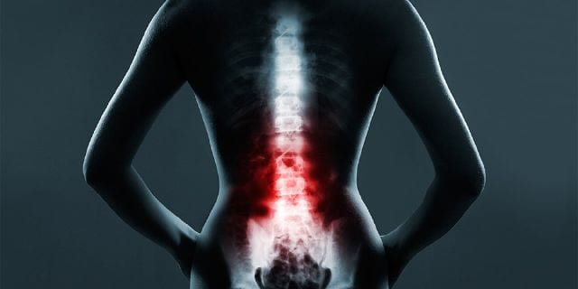 The Role of Emergency Radiology in Spinal Trauma