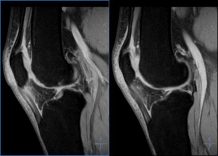 Cos'è la tendinite rotulea?