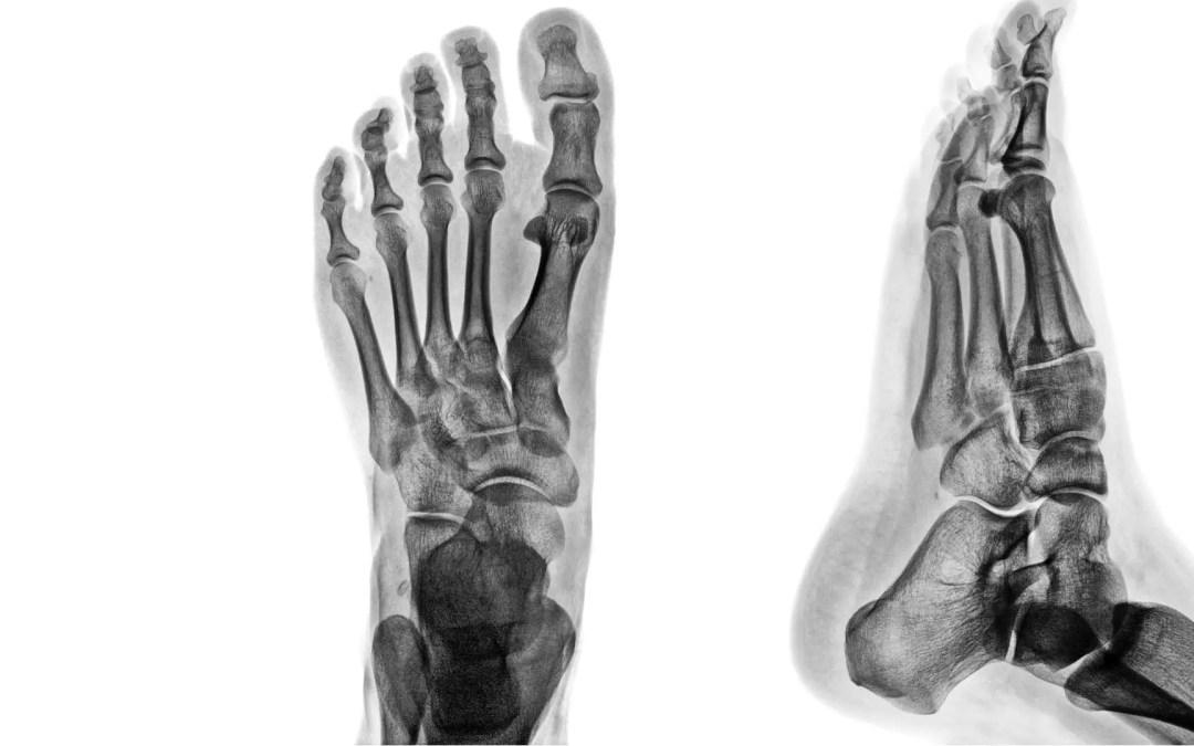 Ankle & Foot Diagnostic Imaging Arthritis & Trauma II  El Paso, TX.