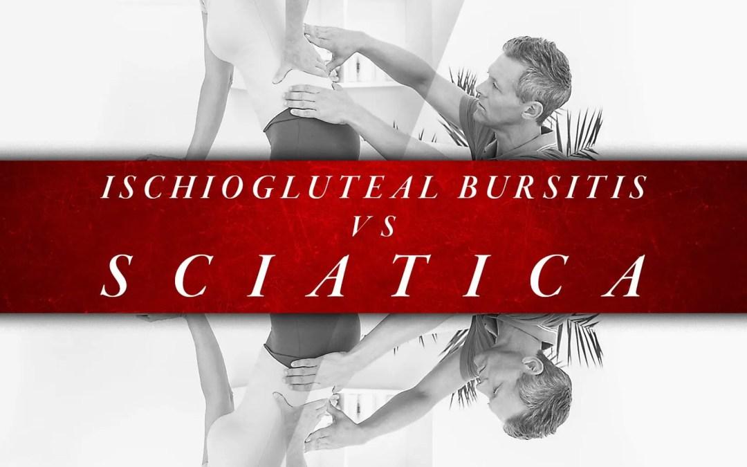 Ischiogluteal Bursitis vs Sciatica | El Paso, TX Chiropractor