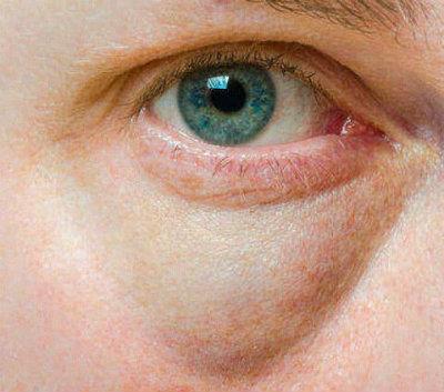treat puffy eyes