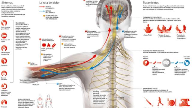 como se detecta una fibromialgia