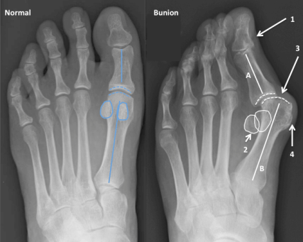 Bunion radiographs