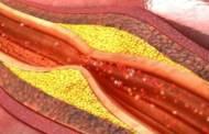 El 40% de los mexicanos padecen colesterol alto