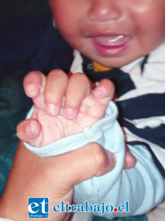 PREOCUPANTES.- Después de ingerir los medicamentos según asegura Masiel, a su hijo se le cayó la piel de sus manitos.