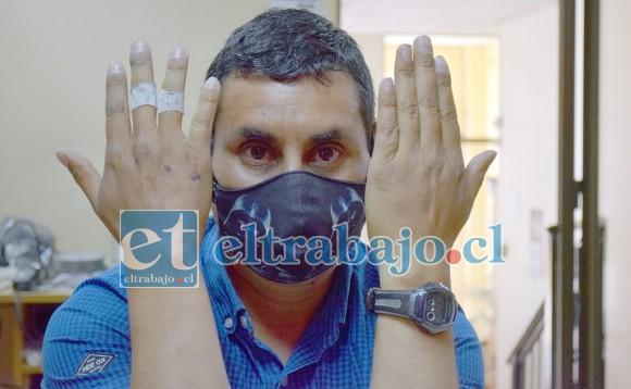 SERIA DENUNCIA.- El vecino Cristian Barraza nos muestra sus manos afectadas, él asegura que dos militares le causaron este daño.