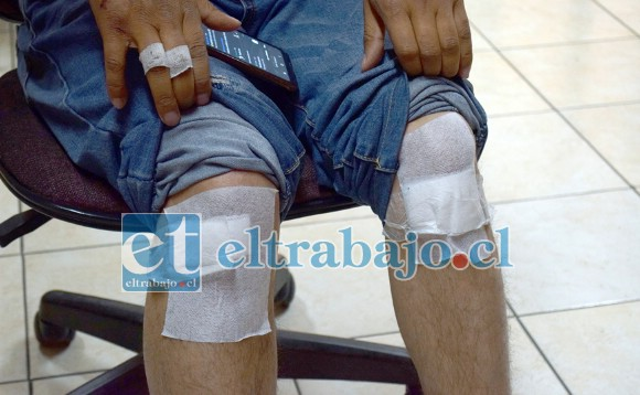RODILLAS TAMBIÉN.- Las rodillas del vecino, según el mismo denunciante, también están muy golpeadas.