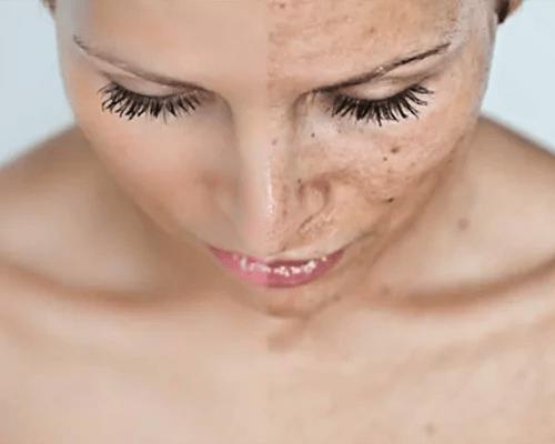Eliminar manchas da pele com arroz integral