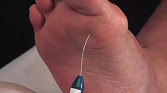 Negligenciar as úlceras do pé diabético, pode resultar em infecções, o que, por sua vez, pode levar à perda de um membro.