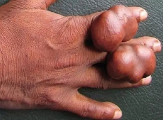 sintomas de triglicerídeos alto