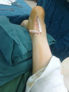 A photograph demonstrating a ruptured Achilles tendon laid open during surgery.