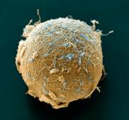 eicel met spermatozoa, mijn passie http://www.embryologisch.nl