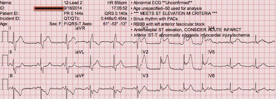 EKG |Ekg Examples