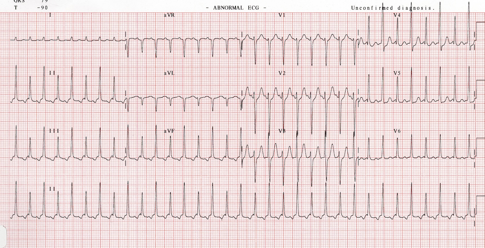 Emdocs Emergency Medicine Educationthe Crashing Patient With Cardiac Tamponade Ed