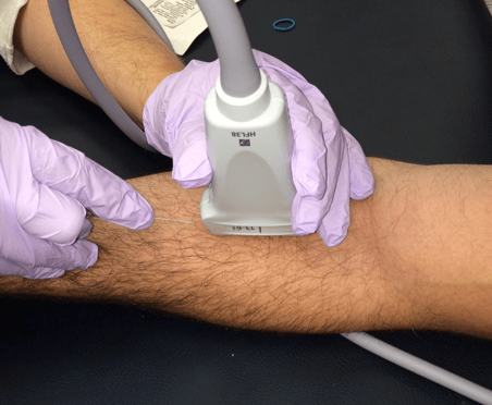 Ultrasound-Guided Peripheral Intravenous Access - Tips for ...