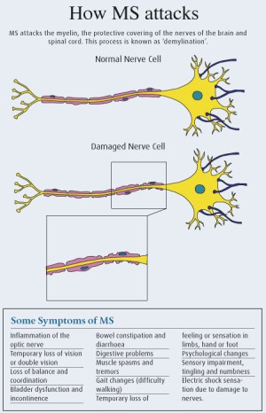 Living With Multiple Sclerosis | Health | Life Forums