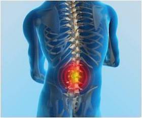 Ep26-Low-Back-Pain-Emergencies