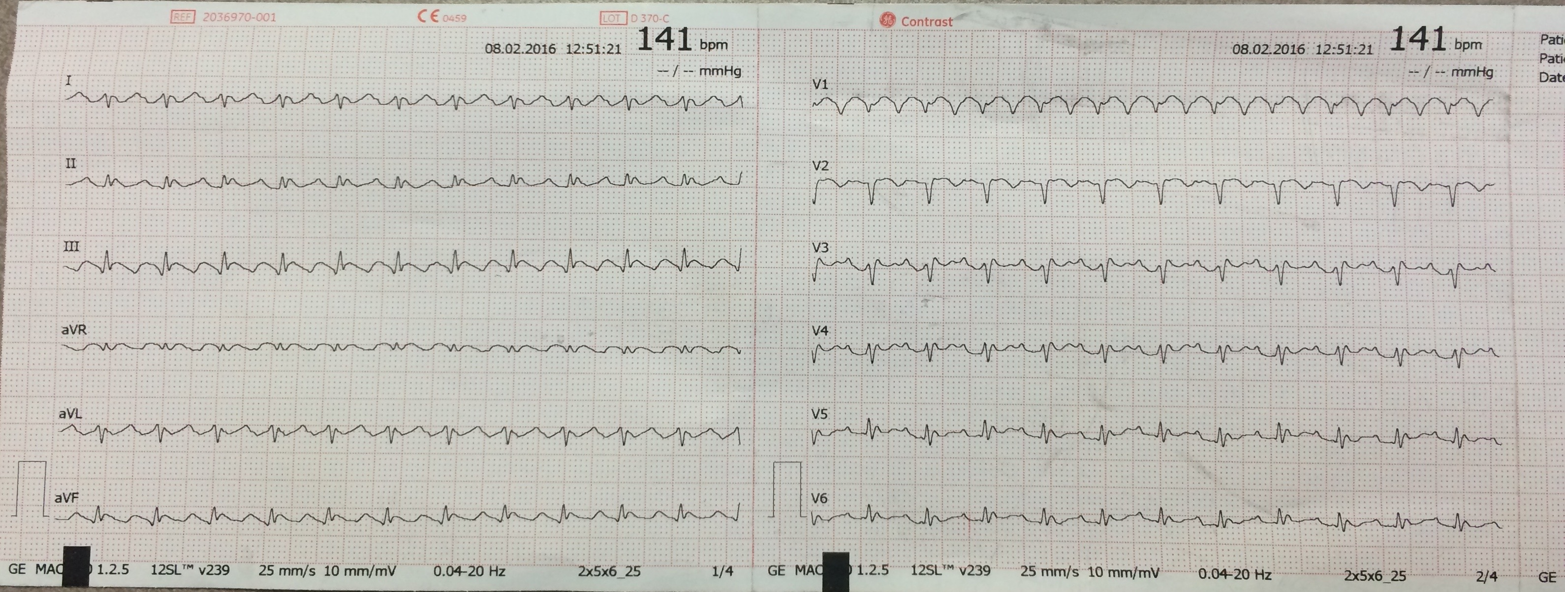 Ecg For Atrial Flutter K Ip