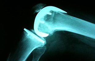 Afectados por prótesis defectuosas Traiber