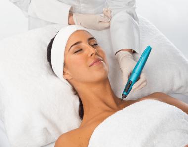 Dermapen Cryo behandling hals