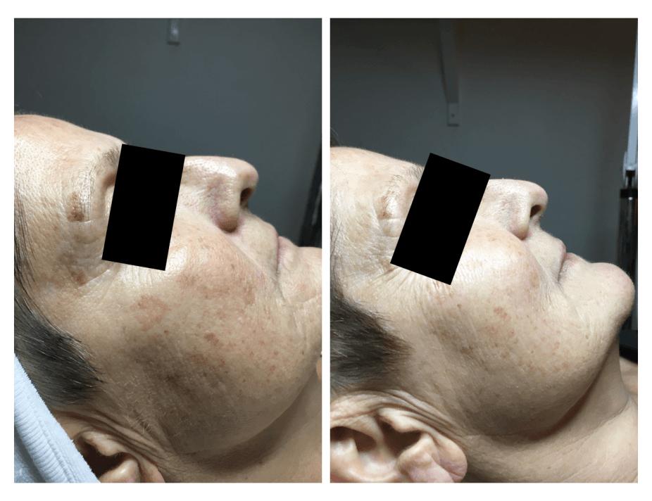 2017 kemisk peeling resultat