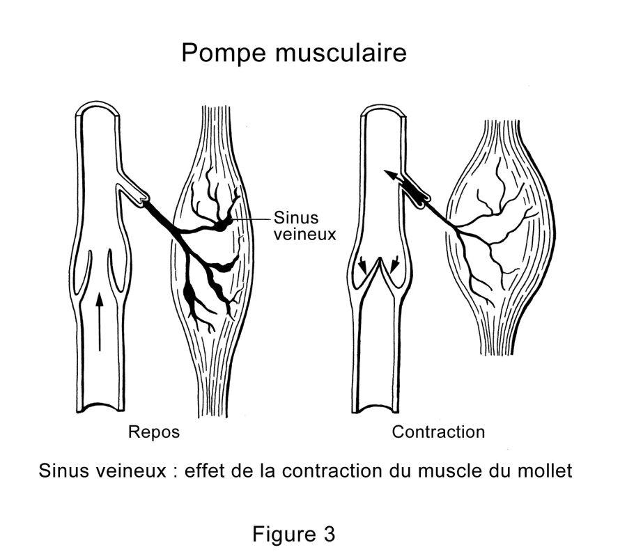 Contracture Musculaire Tous Mes Conseils Pour Bien La