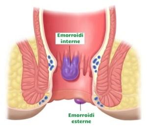 Emorroidi interne- di cosa si tratta