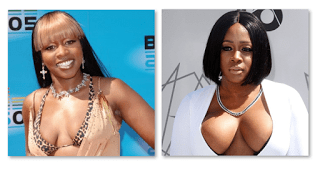 Remy Ma Before And After Plastic Surgery