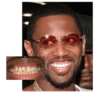 Fabolous Teeth Before And After