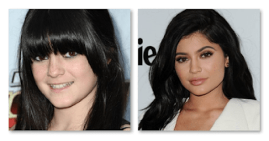Kylie Jenner Before Surgery