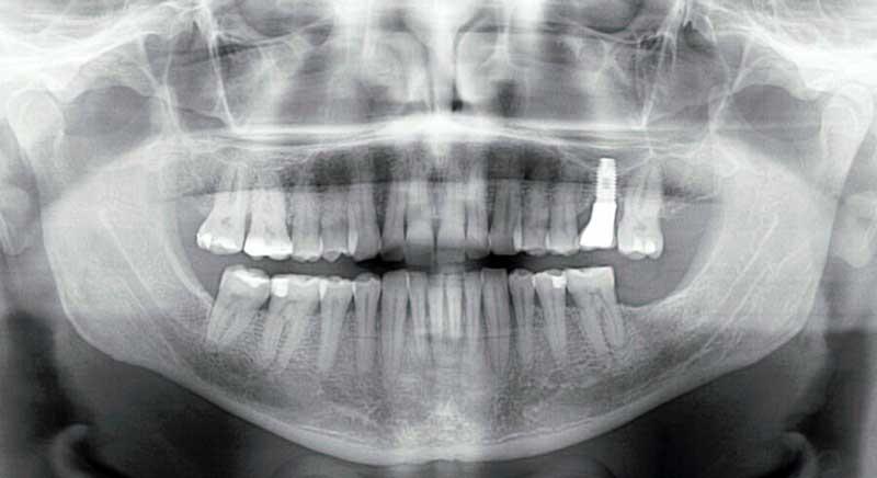 Radiografía panorámica dental