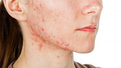 Photo of Everything You Need To Know About Acne Breakout