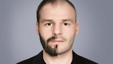 Photo of What is Hair Transplant ? Know The Process of Hair Transplant Technique