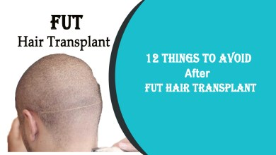 fue hair transplant- 12 Things to Avoid After FUT Hair Transplant