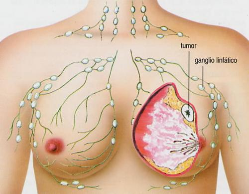 Algunos datos sobre el cáncer de mamas