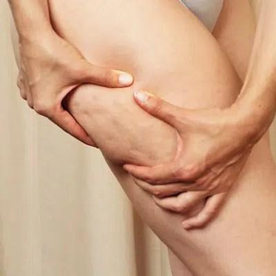 Cómo deshacerte de la celulitis en las piernas