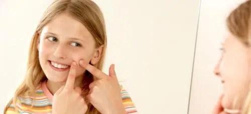 Cómo prevenir el acné adolescente
