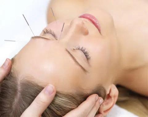 Los beneficios de la acupuntura