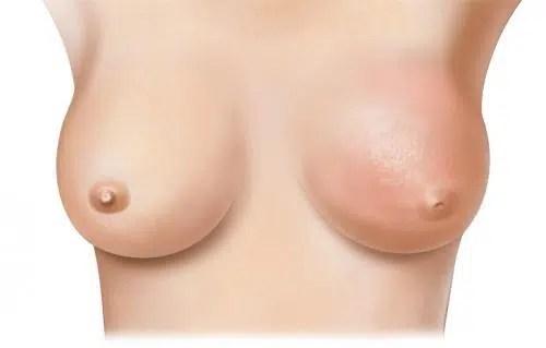 Prevenir el cáncer de mama desde nuestra cocina. Parte I