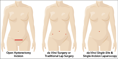 incision comparison