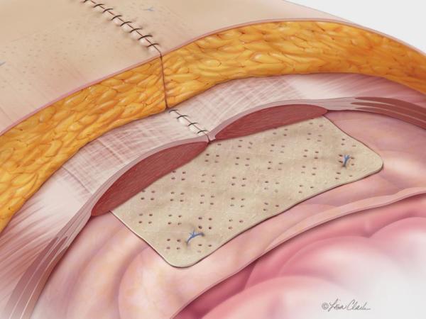 Biodesign Hernia Graft