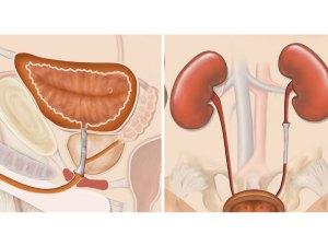 Memokath Urinary Stent