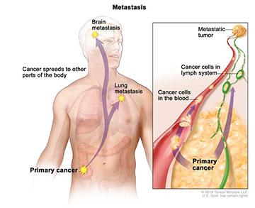 Τι είναι ο μεταστατικός καρκίνος;