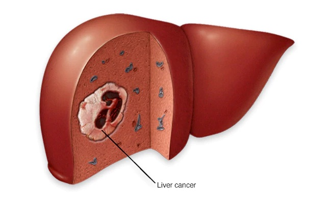 Ο καρκίνος του ήπατος-ηπατοκυτταρικό καρκίνωμα