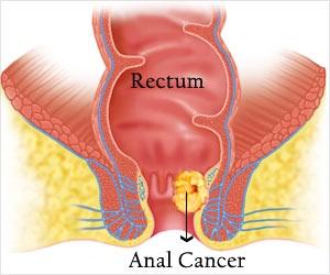 Πρωκτική δυσπλασία και πρωκτικός καρκίνος